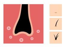 头发兴奋剂象集合 向量例证