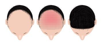 头发移植 向量例证