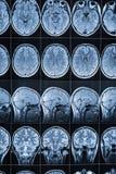 头和脑子, MRI的磁反应想象 免版税库存照片