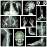 套人的X-射线多个部门 骨骼系统 库存图片