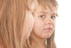 女孩遭受的水痘 免版税图库摄影