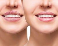 女性嘴唇以在治疗前后的疱疹痛处 库存图片