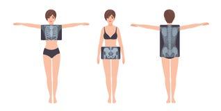 女性患者和在白色背景隔绝的她的胸廓、骨盆和脊椎射线照相 少妇和X-射线 向量例证