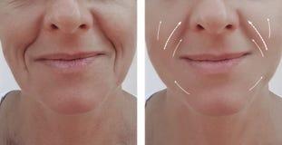 女性成人在做法前后的皱痕撤除皮肤学对比推力补白耐心区别,箭头 免版税库存照片