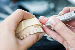 女性正牙医生工作 免版税图库摄影