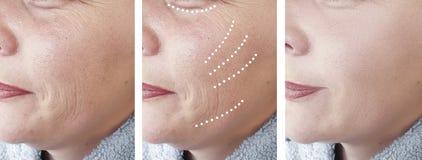 女性皱痕成熟拼贴画区别作用整容术更正再生疗法治疗 免版税库存图片
