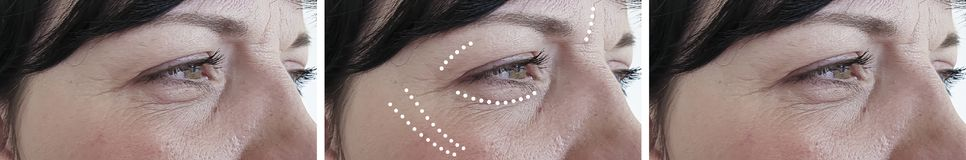 女性皱痕成熟拼贴画区别biorevitalization作用整容术更正再生疗法治疗 库存照片