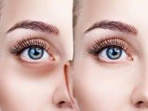 女性眼睛以在眼睛下的挫伤在治疗前后 库存照片