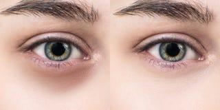 女性眼睛以在眼睛下的挫伤在治疗前后 免版税库存照片