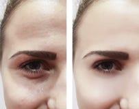 女性眼睛在治疗整容术以后以前起皱纹圈子 免版税图库摄影