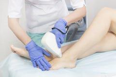 女性肢体的激光去壳的过程 免版税库存照片