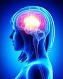 女性脑子 免版税库存图片