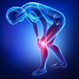 女性膝盖和在蓝色的关节痛 免版税库存照片
