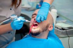 好年轻人对待他的牙在一个牙齿办公室在医生 库存图片