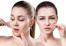 妇女从面孔取消她的老干性皮肤 免版税库存图片