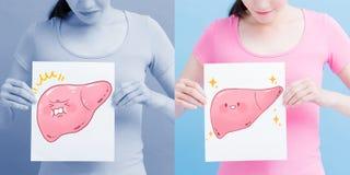 妇女作为健康肝脏广告牌 免版税库存照片
