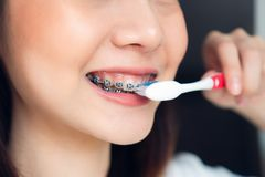妇女刷佩带括号的牙,在洗手间 必须维护好口头健康 库存图片