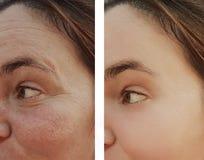 妇女在皮肤学化妆用品做法前后的眼睛皱痕 图库摄影