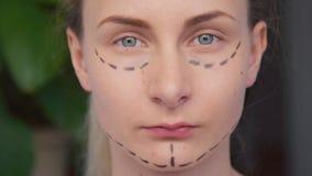 妇女在面孔的整容手术标号 股票录像