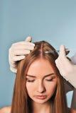 妇女得到在头的射入 Mesotherapy 免版税库存图片