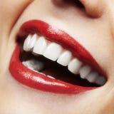 妇女微笑。 漂白的牙。 牙齿保护。 免版税库存照片
