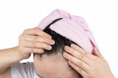 妇女掉头发 免版税库存图片