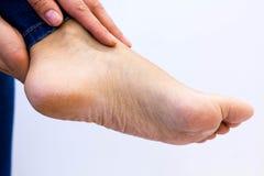 妇女检查她酸疼的脚 孕妇特写镜头递做脚按摩 toching一赤裸酸疼的起皱纹的手 库存图片