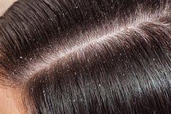 妇女的不健康的顶头皮肤 免版税库存图片