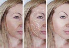 妇女脸面护理起皱纹更正举区别的美容师结果在做法箭头前后 免版税图库摄影