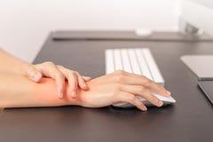 妇女腕子手臂间的痛苦长的用途老鼠工作 办公室综合症状医疗保健和医学概念 免版税库存图片