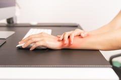 妇女腕子手臂间的痛苦长的用途老鼠工作 办公室综合症状医疗保健和医学概念 库存照片