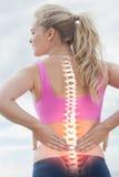 妇女被突出的脊椎充满背部疼痛的 库存照片
