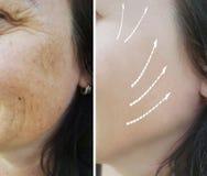 妇女起皱纹整容术染色照片老化成熟在回复做法前后,疗法 图库摄影