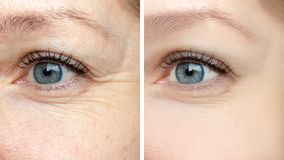 妇女面孔,在治疗前后的眼睛皱痕-振兴biorevitalization cosmetological做法的结果, 库存图片