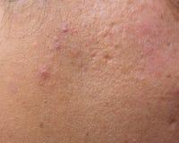 妇女以油腻的皮肤和粉刺伤痕 免版税库存图片