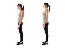 妇女以被削弱的姿势位置瑕疵 免版税库存图片