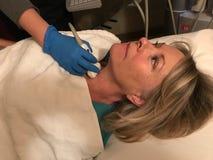 妇女` s甲状腺超声波  免版税库存图片