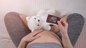 孕妇藏品胎儿超声波照片  股票录像