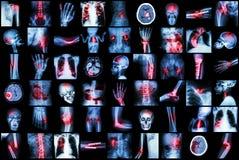 孩子和成人X-射线多种疾病  库存图片