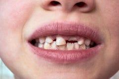 孩子有一个乳齿,并且一颗新的成人牙增长 免版税库存图片