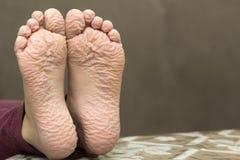 孩子特写镜头在长的浴以后起了皱纹脚 免版税库存照片