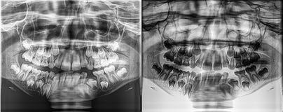 孩子的全景牙齿X-射线,落叶-生长从下颌骨头的乳齿 免版税图库摄影