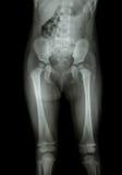 孩子(腹部、屁股、大腿,膝盖)的影片X-射线正常身体 免版税库存照片