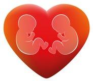 孪生婴孩爱心脏 库存图片