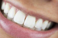 完善微笑,白色牙 免版税库存图片