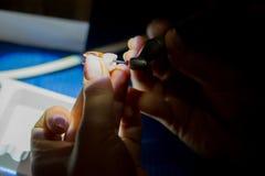 实践使用牙髓学的文件的根管治疗 库存照片