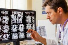 审查脑子的MRI扫描的医生 免版税库存图片