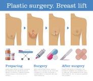 整容手术乳房推力 皇族释放例证