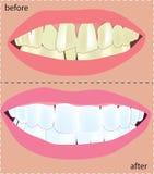 整容牙科学 库存照片