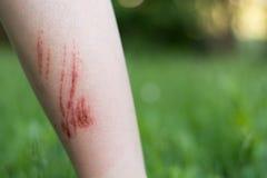 对前臂的擦伤处 免版税库存照片